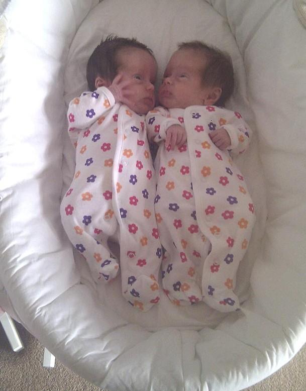 'China Doll' twins Amy, Ava Cowan